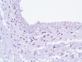 Immunohistochemistry (Formalin/PFA-fixed paraffin-embedded sections) - Anti-Progesterone Receptor antibody [SP42], prediluted (ab228137)