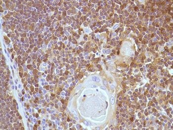 Immunohistochemistry (Formalin/PFA-fixed paraffin-embedded sections) - Anti-Stathmin 1 antibody [SP49], prediluted (ab228139)