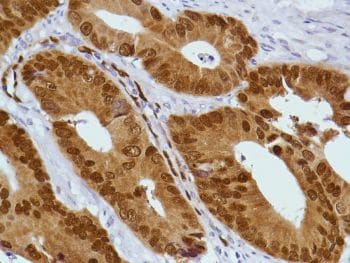 Immunohistochemistry (Formalin/PFA-fixed paraffin-embedded sections) - Anti-CDX2 antibody [SP54] - N-terminal, prediluted (ab228141)