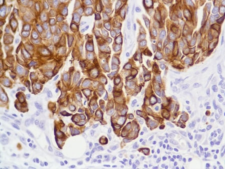 Immunohistochemistry (Formalin/PFA-fixed paraffin-embedded sections) - Anti-Cytokeratin 8 antibody [SP102], prediluted (ab228149)