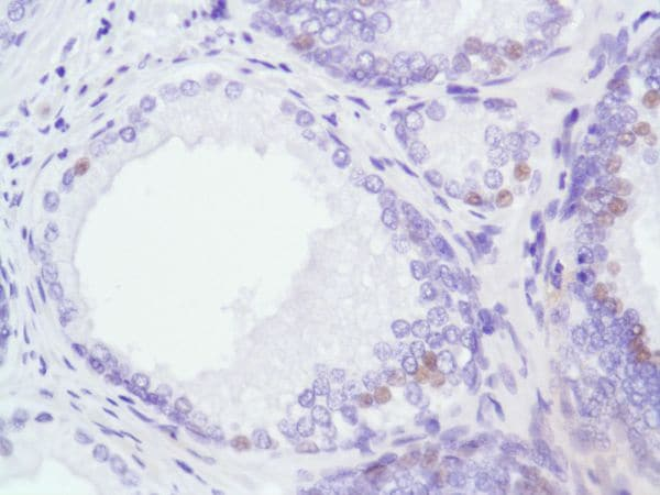 Immunohistochemistry (Formalin/PFA-fixed paraffin-embedded sections) - Anti-Androgen Receptor antibody [SP107], prediluted (ab228151)
