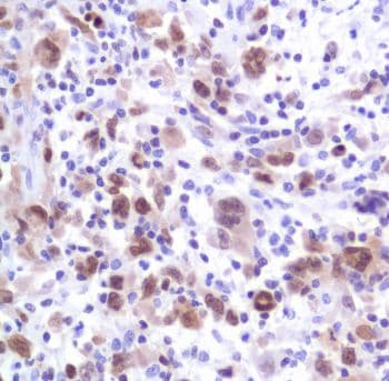 Immunohistochemistry (Formalin/PFA-fixed paraffin-embedded sections) - Anti-MUM1 antibody [SP114], prediluted (ab228154)