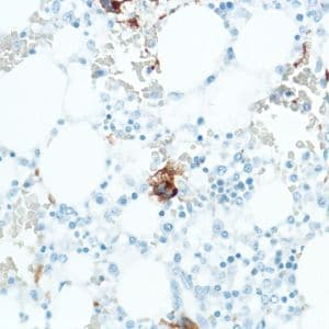 Immunohistochemistry (Formalin/PFA-fixed paraffin-embedded sections) - Anti-CD42b antibody [SP202], prediluted (ab228176)