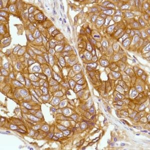 Immunohistochemistry (Formalin/PFA-fixed paraffin-embedded sections) - Anti-CD276 antibody [SP206], prediluted (ab228178)