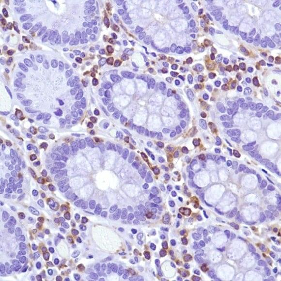 Immunohistochemistry (Formalin/PFA-fixed paraffin-embedded sections) - Anti-MCSF Receptor antibody [SP211], prediluted (ab228180)