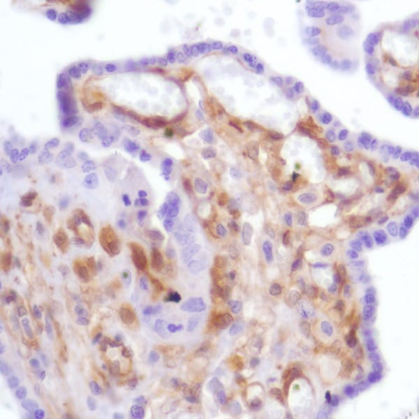 Immunohistochemistry (Formalin/PFA-fixed paraffin-embedded sections) - Anti-Galectin 1 antibody [SP247] - C-terminal, prediluted (ab228184)
