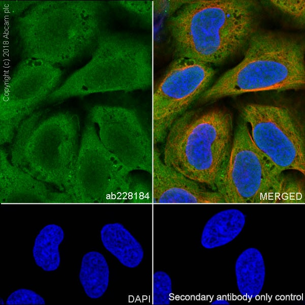 Immunocytochemistry/ Immunofluorescence - Anti-Galectin 1 antibody [SP247] - C-terminal, prediluted (ab228184)