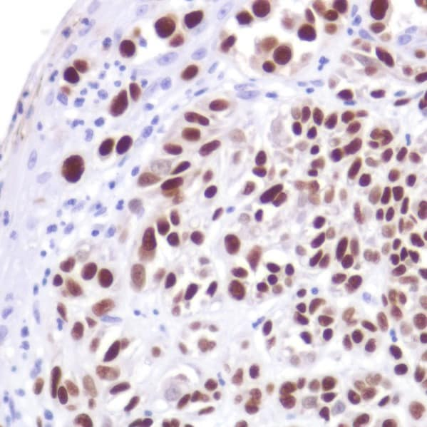 Immunohistochemistry (Formalin/PFA-fixed paraffin-embedded sections) - Anti-SOX10 antibody [SP267] - C-terminal, prediluted (ab228188)