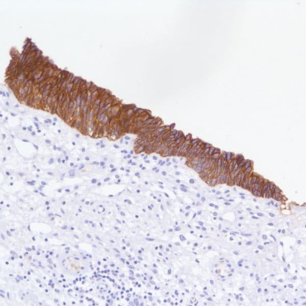 Immunohistochemistry (Formalin/PFA-fixed paraffin-embedded sections) - Anti-TROP2 antibody [SP295], prediluted (ab228199)