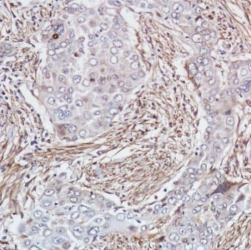 Immunohistochemistry (Formalin/PFA-fixed paraffin-embedded sections) - Anti-Smad4 antibody [SP306] - C-terminal, prediluted (ab228205)
