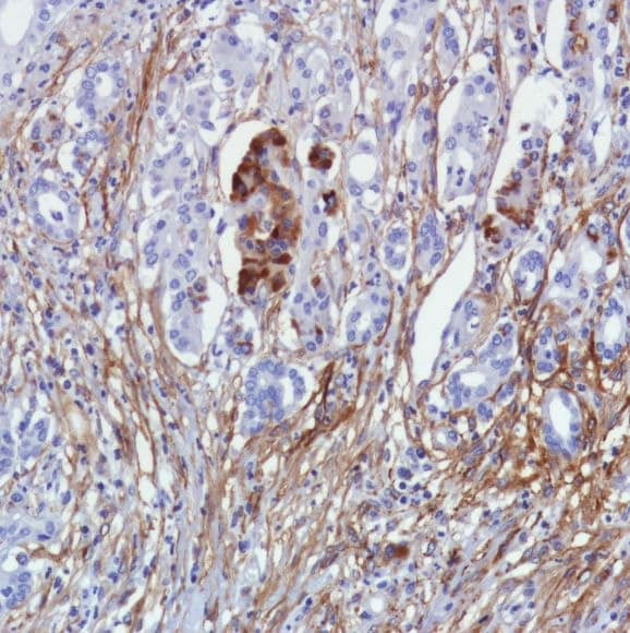 Immunohistochemistry (Formalin/PFA-fixed paraffin-embedded sections) - Anti-Fibroblast activation protein, alpha antibody [SP325], prediluted (ab228215)