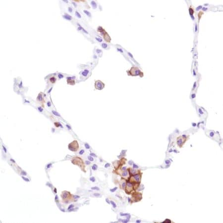 Immunohistochemistry (Formalin/PFA-fixed paraffin-embedded sections) - Anti-CD16a antibody [SP189] - C-terminal, prediluted (ab228278)