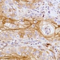 Immunohistochemistry (Formalin/PFA-fixed paraffin-embedded sections) - Anti-LYPD3 antibody [SP208], prediluted (ab228289)