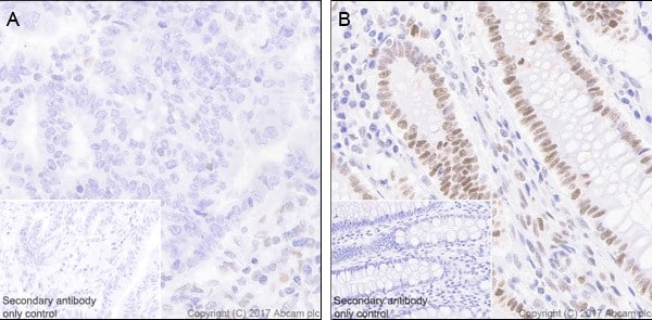 Immunohistochemistry (Formalin/PFA-fixed paraffin-embedded sections) - Anti-MSH2 antibody [EPR21017-123] - BSA and Azide free (ab228334)