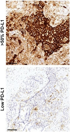 Immunohistochemistry (Formalin/PFA-fixed paraffin-embedded sections) - Anti-PD-L1 antibody [73-10] (ab228415)
