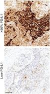 Immunohistochemistry (Formalin/PFA-fixed paraffin-embedded sections) - Anti-PD-L1 antibody [73-10] (ab228415)