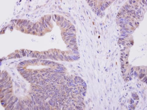 Immunohistochemistry (Formalin/PFA-fixed paraffin-embedded sections) - Anti-H6PD/GDH antibody (ab228423)
