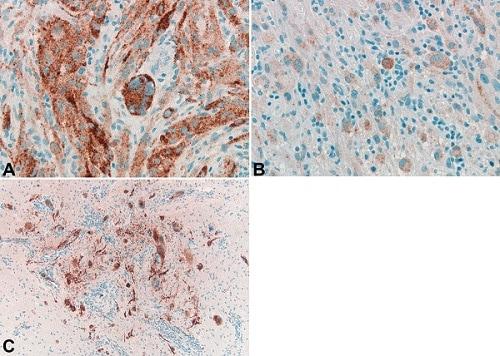 Immunohistochemistry (Formalin/PFA-fixed paraffin-embedded sections) - Anti-BRAF (mutated V600E) antibody [VE1] (ab228461)
