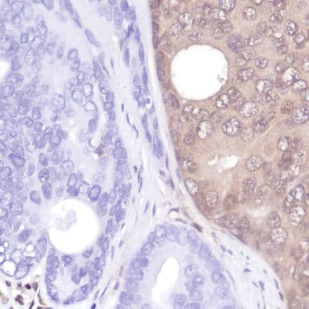 Immunohistochemistry (Formalin/PFA-fixed paraffin-embedded sections) - Anti-PTEN antibody [SP218] - C-terminal (ab228466)