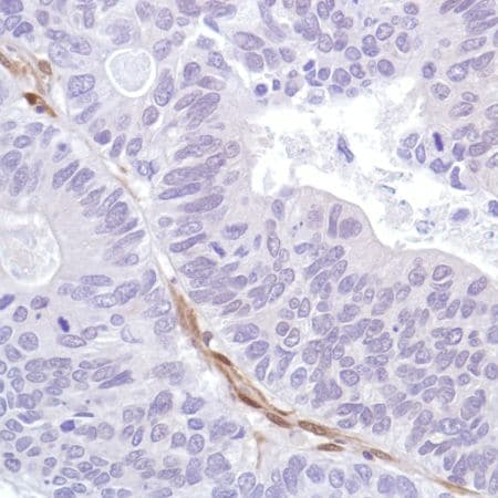 Immunohistochemistry (Formalin/PFA-fixed paraffin-embedded sections) - Anti-PTEN antibody [SP218] - C-terminal, prediluted (ab228467)