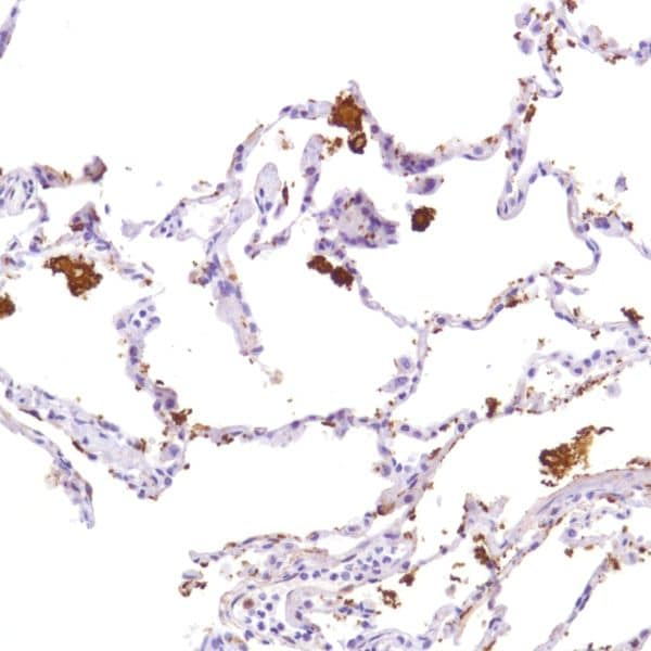 Immunohistochemistry (Formalin/PFA-fixed paraffin-embedded sections) - Anti-Indoleamine 2, 3-dioxygenase antibody [SP277] - N-terminal (ab228470)