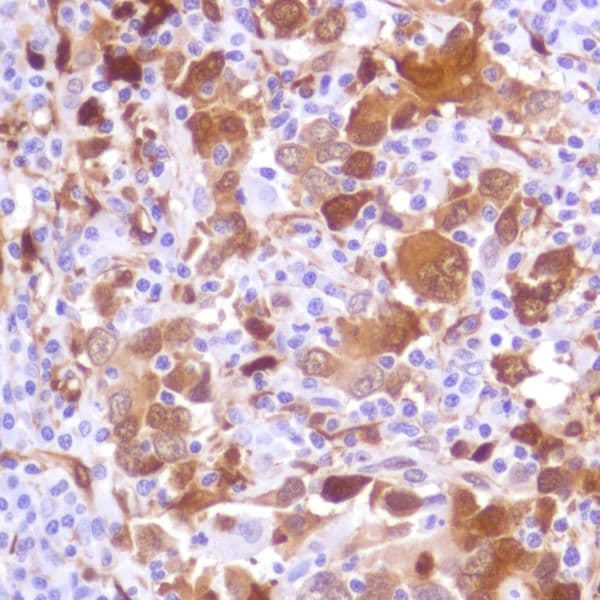 Immunohistochemistry (Formalin/PFA-fixed paraffin-embedded sections) - Anti-Indoleamine 2, 3-dioxygenase antibody [SP282] (ab228472)