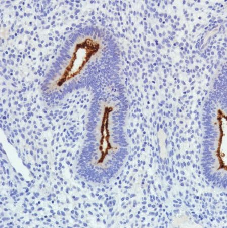 Immunohistochemistry (Formalin/PFA-fixed paraffin-embedded sections) - Anti-SLC34A2 antibody [SP322] - N-terminal (ab228474)