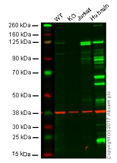 Western blot - Anti-PYK2 antibody [YE353] - BSA and Azide free (ab228477)