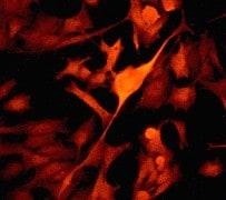 Immunocytochemistry/ Immunofluorescence - Anti-PYK2 antibody [YE353] - BSA and Azide free (ab228477)