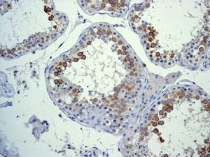 Immunohistochemistry (Formalin/PFA-fixed paraffin-embedded sections) - Anti-CD168 antibody [EPR4054] - Low endotoxin, Azide free (ab228482)