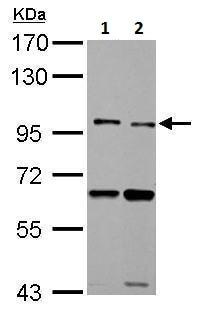 Western blot - Anti-TLR5 antibody - N-terminal (ab228493)