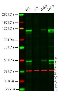 Anti-NFkB p105 / p50 antibody [E381] (ab32360)