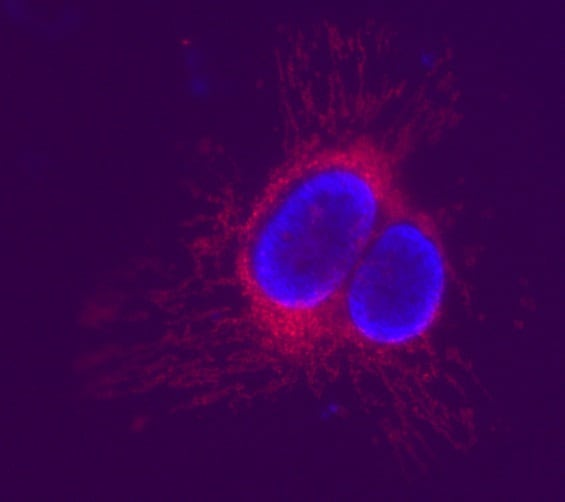 HeLa cells labeled with ab228567 Mitochondrial Superoxide Indicator Assay Kit