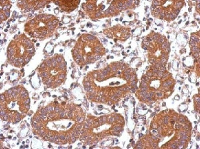 Immunohistochemistry (Formalin/PFA-fixed paraffin-embedded sections) - Anti-UBPY/USP8 antibody (ab228572)