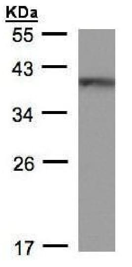 Western blot - Anti-BRAF35 antibody (ab228577)