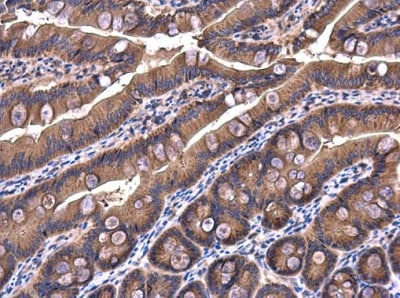 Immunohistochemistry (Formalin/PFA-fixed paraffin-embedded sections) - Anti-SIMPL antibody (ab228579)