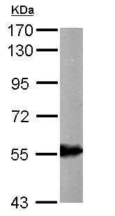Western blot - Anti-ALDH6A1 antibody (ab228584)