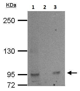 Immunoprecipitation - Anti-L3MBTL2 antibody (ab228586)