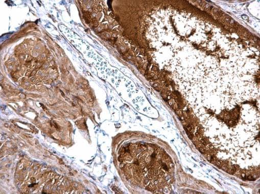 Immunohistochemistry (Formalin/PFA-fixed paraffin-embedded sections) - Anti-NFkB Inducing Kinase NIK antibody (ab228587)