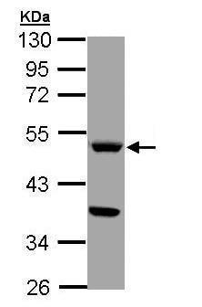 Western blot - Anti-Tryptophan Hydroxylase/TPH antibody (ab228588)