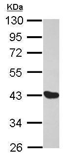 Western blot - Anti-MAGEA1 antibody (ab228591)