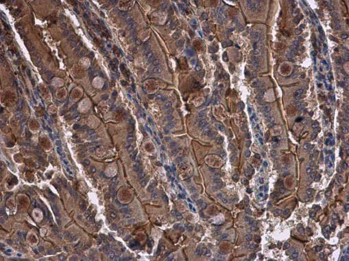 Immunohistochemistry (Formalin/PFA-fixed paraffin-embedded sections) - Anti-CYR61/CCN1 antibody (ab228592)