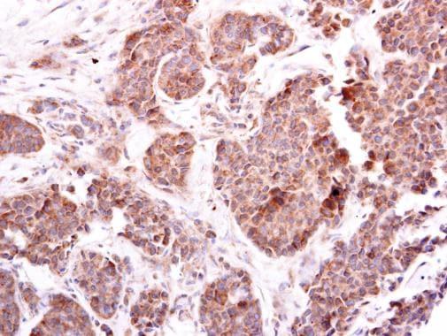 Immunohistochemistry (Formalin/PFA-fixed paraffin-embedded sections) - Anti-EIF4E2 antibody (ab228595)