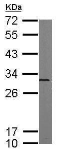 Western blot - Anti-Proteasome 20S alpha 5/PSMA5 antibody (ab228600)