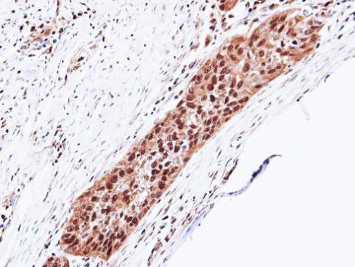 Immunohistochemistry (Formalin/PFA-fixed paraffin-embedded sections) - Anti-Proteasome 20S alpha 5/PSMA5 antibody (ab228600)