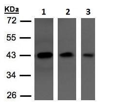 Western blot - Anti-Neuroserpin antibody - C-terminal (ab228607)