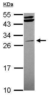 Western blot - Anti-STK16 antibody (ab228608)