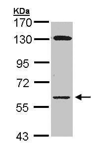 Western blot - Anti-Glycerol kinase antibody (ab228615)