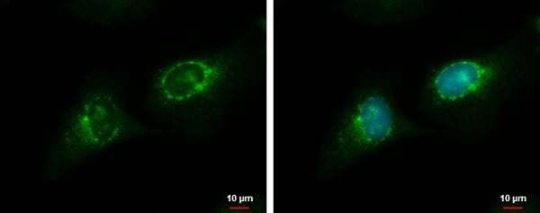 Immunocytochemistry/ Immunofluorescence - Anti-RGS7 antibody (ab228618)