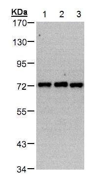 Western blot - Anti-PIP5K1C antibody (ab228620)